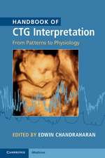 Handbook of CTG Interpretation: From Patterns to Physiology