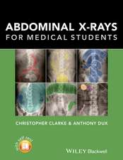 Abdominal X–rays for Medical Students