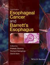 Esophageal Cancer and Barrett′s Esophagus
