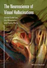 The Neuroscience of Visual Hallucinations