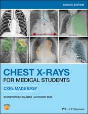 Chest X–Rays for Medical Students: CXRs Made Easy