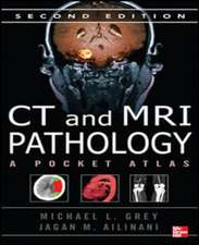 CT & MRI Pathology: A Pocket Atlas, Second Edition (Int'l Ed)