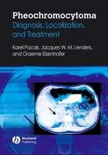 Pheochromocytoma: Diagnosis, Localization, and Treatment