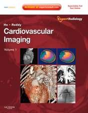 Cardiovascular Imaging, 2-Volume Set: Expert Radiology Series