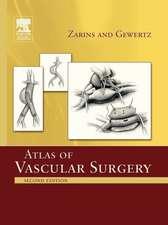 Atlas Of Vascular Surgery - Paperback Edition