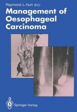 Management of Oesophageal Carcinoma