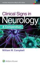 Clinical Signs in Neurology