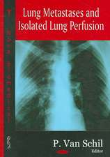 Lung Metastases and Isolated Lung Perfusion