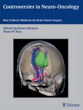 Controversies in Neuro-Oncology: Best Evidence Medicine for Brain Tumor Surgery
