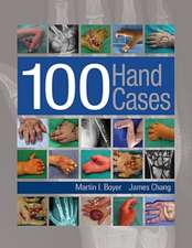 100 Hand Cases
