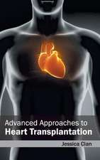 Advanced Approaches to Heart Transplantation