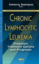 Chronic Lymphocytic Leukemia: Diagnosis, Treatment Options & Prognosis