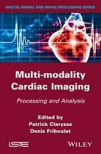 Multi–modality Cardiac Imaging: Processing and Analysis