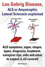 Lou Gehrig Disease, ALS or Amyotrophic Lateral Sclerosis Explained. ALS Symptoms, Signs, Stages, Types, Diagnosis, Treatment, Caregiver Tips, AIDS and:  Pain Relief, Treatment, Diet and Remedies.