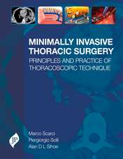 Minimally Invasive Thoracic Surgery: Principles and Practice of Thoracoscopic Technique