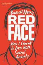Red Face: How I Learnt to Live With Social Anxiety