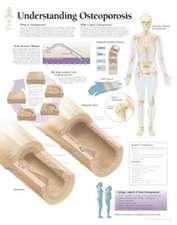 Understanding Osteoporosis Chart: Wall Chart