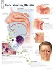 Understanding Rhinitis Chart: Wall Chart