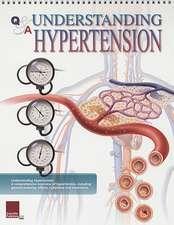 Understanding Hypertension Flip Chart