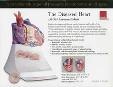 Life Size Diseased Heart Model