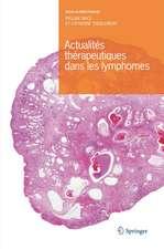 Actualités thérapeutiques dans les lymphomes