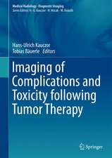 Imaging of Complications and Toxicity following Tumor Therapy
