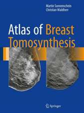 Atlas of Breast Tomosynthesis: Imaging Findings and Image-Guided Interventions