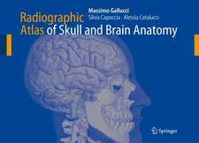 Radiographic Atlas of Skull and Brain Anatomy