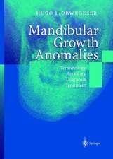 Mandibular Growth Anomalies: Terminology - Aetiology Diagnosis - Treatment