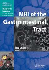 MRI of the Gastrointestinal Tract