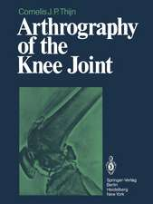 Arthrography of the Knee Joint