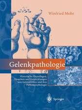 Gelenkpathologie: Historische Grundlagen, Ursachen und Entwicklungen von Gelenkleiden und ihre Pathomorphologie