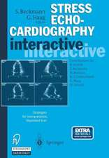 Stress Echocardiography interactive: Strategies for interpretation, illustrated text plus CD-ROM