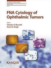 Fna Cytology of Ophthalmic Tumors:  A History of the European Society for Paediatric Endocrinology