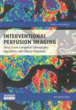 Interventional Perfusion Imaging Using C-arm Computed Tomography: Algorithms and Clinical Evaluation