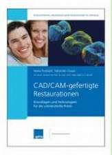 CAD/CAM-gefertigte Restaurationen