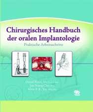 Chirurgisches Handbuch der oralen Implantologie