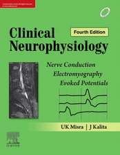 Clinical Neurophysiology: Nerve Conduction, Electromyography, Evoked Potentials