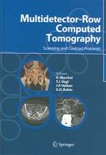 Multidetector-Row Computed Tomography: Scanning and Contrast Protocols