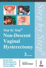 Step by Step: Non-Descent Vaginal Hysterectomy