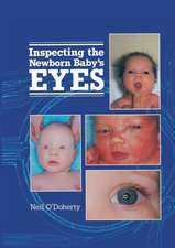 Inspecting the Newborn Baby's Eyes