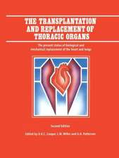 The Transplantation and Replacement of Thoracic Organs: The Present Status of Biological and Mechanical Replacement  of the Heart and Lungs