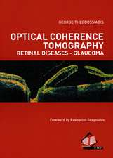 Optical Coherence Tomography Retinal Diseases-Glucoma